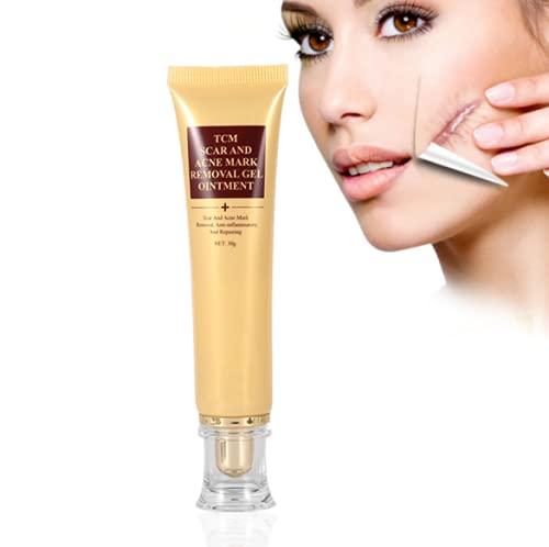 Scar Cream, littekenverwijderingscr¨¨me acne puistjesverwijderaar smetcr¨¨me zalf balans huidskleur concealer 30g
